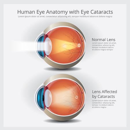 Augenanatomie mit Augenanomalien-Vektor-Illustration