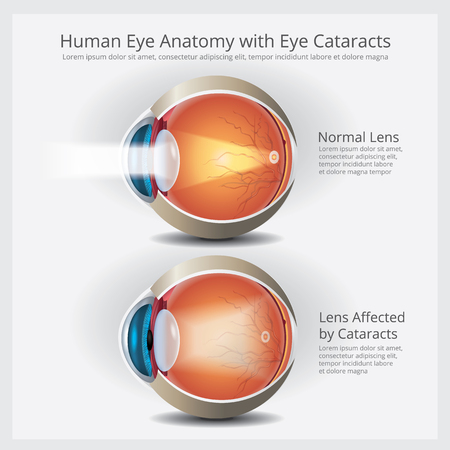 Eye Anatomy with Eye Abnormalities Vector Illustration Stok Fotoğraf - 111007333