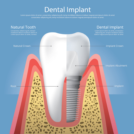 Human teeth and Dental implant Vector Illustration Banque d'images - 120411786