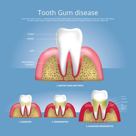 Menschliche Zähne Stadien der Zahnfleischerkrankung Vektor-Illustration Vektorgrafik