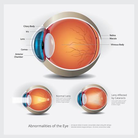 Anatomia dell'occhio con illustrazione vettoriale di anomalie dell'occhio Vettoriali