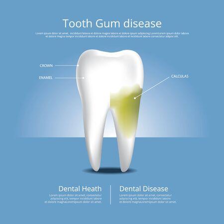 Human teeth Stages of Gum Disease Vector Illustration Stock Illustratie