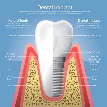 Human teeth and Dental implant Vector Illustration Vector Illustration