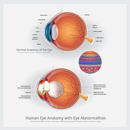 Anatomia dell'occhio con illustrazione vettoriale di anomalie dell'occhio