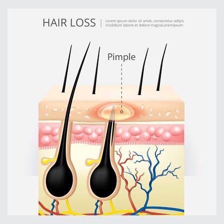 Hair Loss Structure Vector Illustration Stock Illustratie