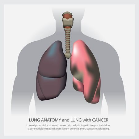 Lung with Detail and Lung Cancer Vector Illustration Vector Illustration