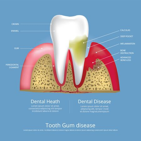 Human teeth Stages of Gum Disease Vector Illustration 向量圖像