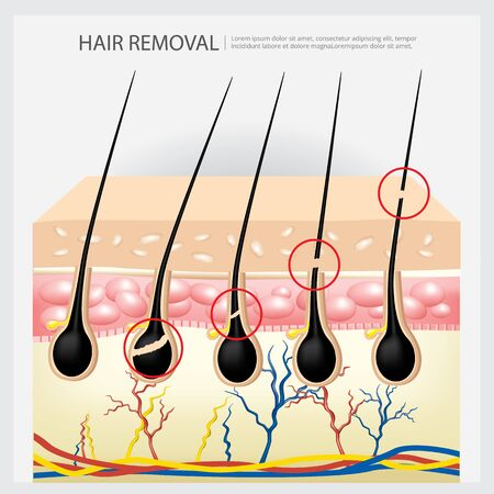 Hair Removal Example Vector Illustration