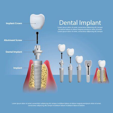 인간의 치아와 치과 임플란트 벡터 일러스트 레이 션 벡터 (일러스트)
