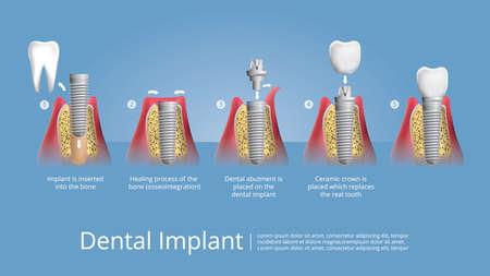Human teeth and Dental implant Vector Illustration Banco de Imagens - 151072617