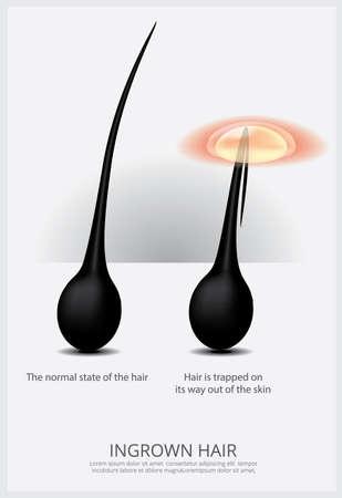 Ingrown Hair Structure Vector Illustration