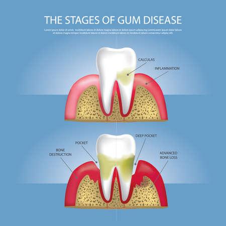 Human teeth Stages of Gum Disease Vector Illustration Ilustração