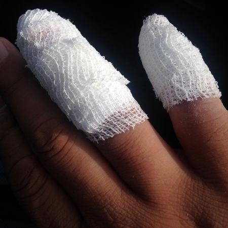 bandaged: Injured bandaged finger