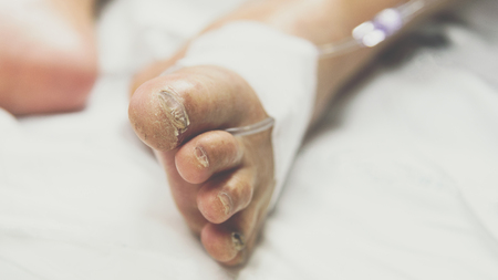 Patient in the hospital with saline intravenous on a elderly patient foot instep