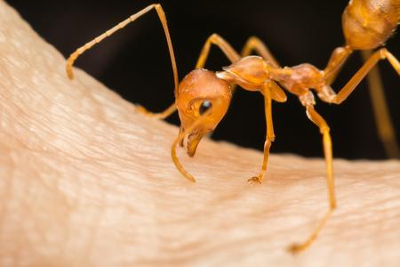 매크로에서 개미 (레드 개미 또는 그린 트리 개미) 자기 방어 또는 인간으로부터 자기 보호를 위해 인간의 피부에 물고