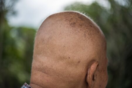 Asian elderly man is cancer patient baldness from shave hair because of hair loss from chemo drug (chemotherapy) to treat cancer from the hospital
