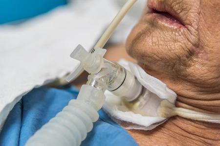 Geduldige asiatische ältere Frauen der 80er Jahre tun Tracheotomiegebrauchsventilator für Atmungshilfe auf Bett im Krankenhaus.