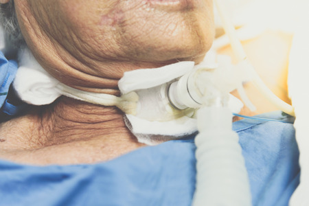 Patient asian elder women 80s do tracheostomy use ventilator for respiration breathing help on patient bed in intensive care unit (ICU.) room at hospital.