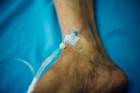 Patient asian elder man 80s with saline intravenous at C-line or A-line on a elderly patient foot instep on patient bed in intensive care unit (ICU.) room at hospital. Reklamní fotografie