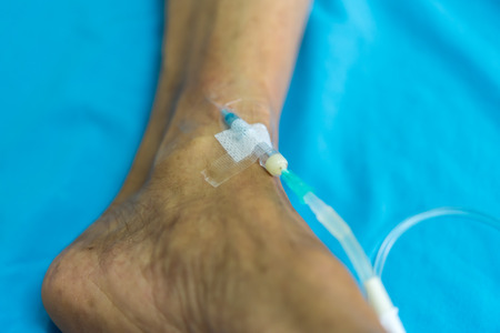 Patient asian elder man 80s with saline intravenous at C-line or A-line on a elderly patient foot instep on patient bed in intensive care unit (ICU.) room at hospital. Stock Photo