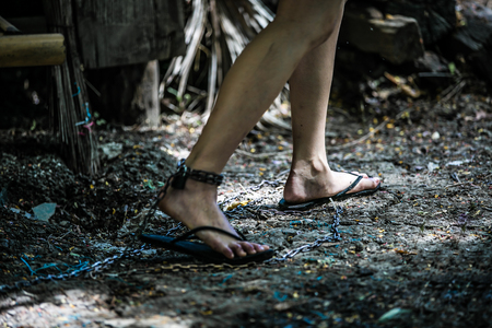 Foot injury of women with vein edema involves hanging metal chains near the ground.