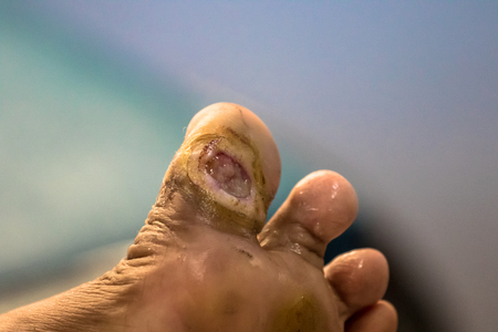 Foot ulcer, Gangrene at big toe. Foto de archivo