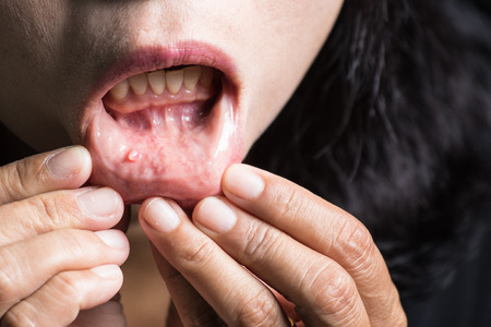 口の中、唇の粘液嚢胞腫瘍です。