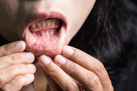 Tumor in de mond, MUCOCELE LIP.