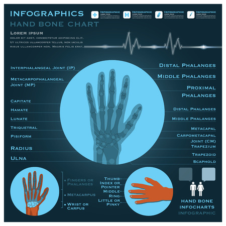 infocharts: Hand Bone Infographic Infocharts Health And Medical Science Background