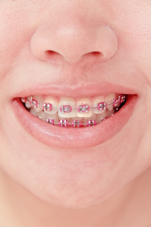 orthodontic: close up of young girl smiling with braces