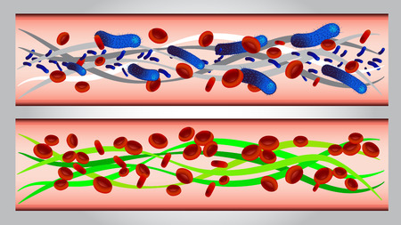 parasites: illustration of  Red blood cells and bacteria in artery