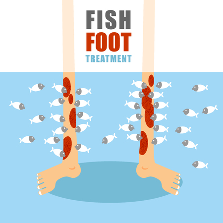 Treatment foot fish. Medical procedure for treatment of psoriasis and skin diseases. Small fish eat painful human skin. Lower limbs standing in water with marine animals. Stock Illustratie