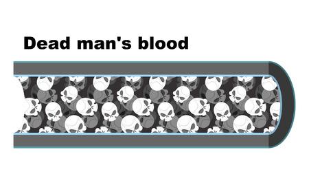 globulo rojo: La sangre del hombre muerto. Las células sanguíneas en forma de cráneos. Anatomía de los vasos sanguíneos. Viena hombre muerto. muerte de glóbulos blancos.
