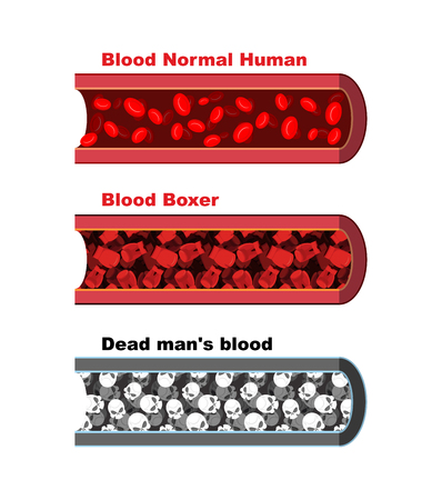 blood vessel: Blood vessel of  healthy person with normal leukocytes. Bloody Artery Boxer. Blood cells red boxing gloves. Dead man  blood- lymph cells skull. Anatomical human blood vein