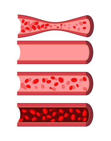 해부학 인간의 혈관 설정합니다. 건강한 혈관. 병에 걸린 동맥 혈액. 조밀 한 혈액 정맥에 어두운 보라색. 백혈구 소량 용기. 인간 혈액 세포. 일러스트