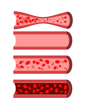 Anatomical human blood vessels set. Healthy blood vessel. Diseased artery blood. Dark purple in Dense blood vein. Vessel with a small amount of white blood cells. Human blood cells. Vectores