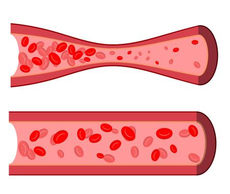 Artère sanglante. Le blocage des vaisseaux sanguins. Artère malade de leucocytes. Les cellules du sang dans la veine humaine close-up. Artère humain sain et douloureux. Vecteurs