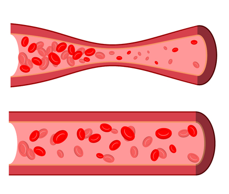 Bloody artery. Blockage of blood vessels. Sick artery with leukocytes. Blood cells in  human vein close-up. Healthy and painful human artery.