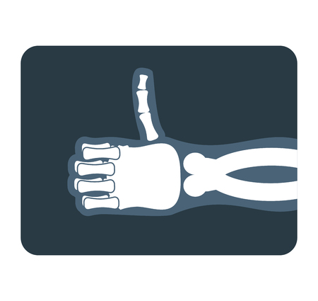 sinuses: Thumbs up x-ray. Bones of hand shows all good. Medical illustration Illustration