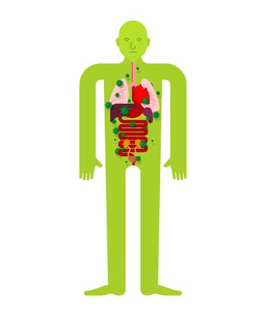 Órgano interno enfermo Anatomía de la enfermedad humana. Corazón y pulmones. Hígado y estómago. Esófago y páncreas. Riñón y bazo. Dolor de virus y bacterias. Persona enferma Ilustración de vector