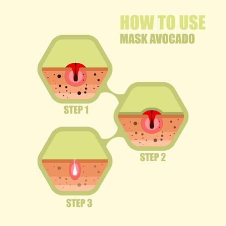 Modern vector illustration of skin problems. Dark dots, acne. Fa