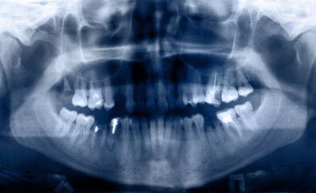 maxilla: Panoramic dental X-Ray, all teeth in view