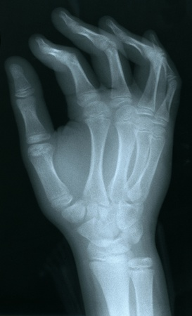 shadowgraph: X-ray of a human hand