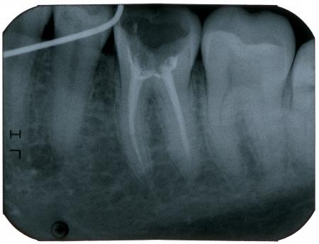 Dental X-Ray, Makro