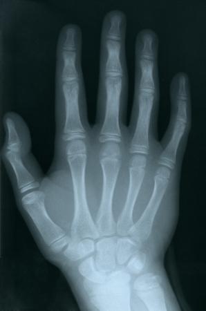 Röntgen einer menschlichen Hand