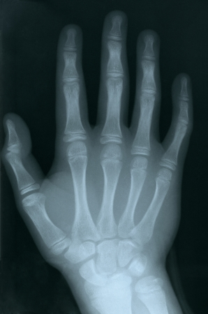 radiogram: X-ray of a human hand
