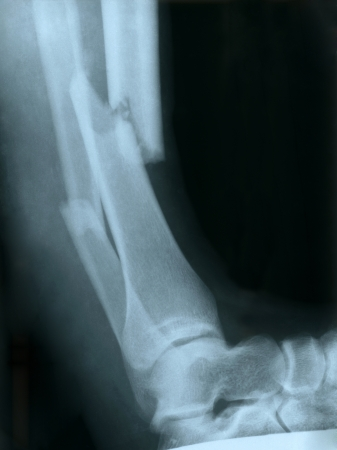 shadowgraph: X-ray of a broken leg Stock Photo