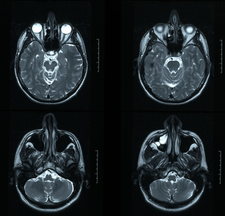 Magnetic resonance image (MRI) of the brain Stock Photo - 23284272