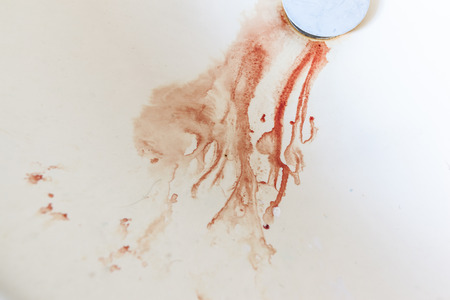 killing cancer: blood droplets going down the drain in a domestic sink