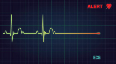 Flat line alert on a heart monitor. Vector illustration Eps 10 Vector